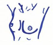 Brust2