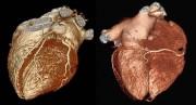 Oberflächendarstellung des Herzens mit Herzkranzgefäßen